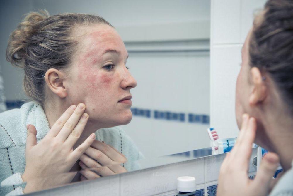 Skincare 101: Mengenal Cystic Acne, Tipe Jerawat yang Paling Parah