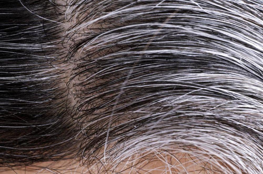 5 Manfaat Hebat Minyak Wijen untuk Rambut, Sudah Pernah Coba?