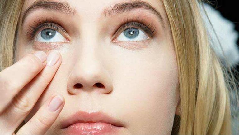 8 Penyebab Kamu Memiliki Kantung Mata, Tak Hanya karena Nangis!