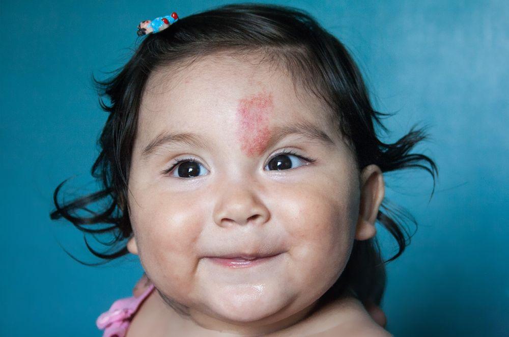 Skincare 101: Perbedaan Antara Tahi Lalat, Bintik, dan Tanda Lahir