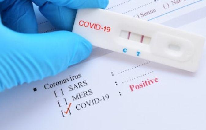 Update COVID-19 Kudus, 10 Positif Virus Corona, 81 Orang Dikarantina
