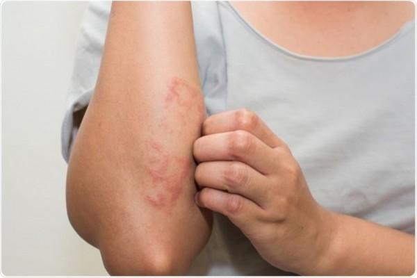 Hati-hati, 6 Hal Ini Dapat Memperburuk Dermatitis Atopik