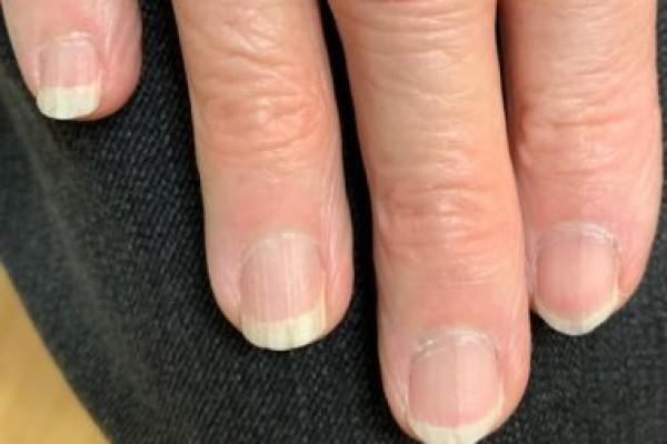 Kuku Rapuh dan Mudah Patah? Mungkin Brittle Nail Syndrome Penyebabnya