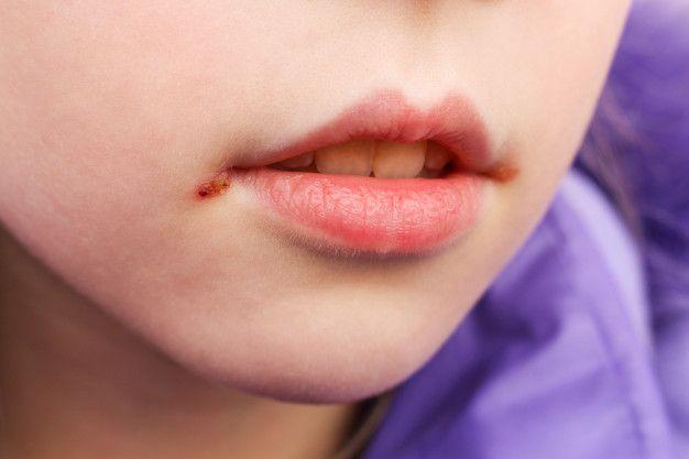 5 Penyakit Mulut yang Biasa Menyertai Infeksi HIV