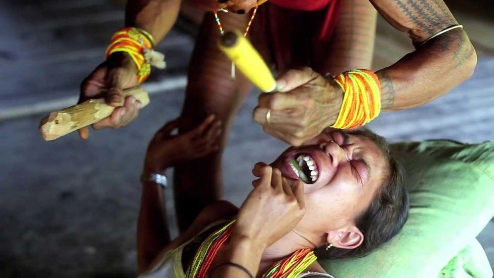 5 Fakta Gigi Runcing, Simbol Kecantikan Perempuan dari Suku Mentawai