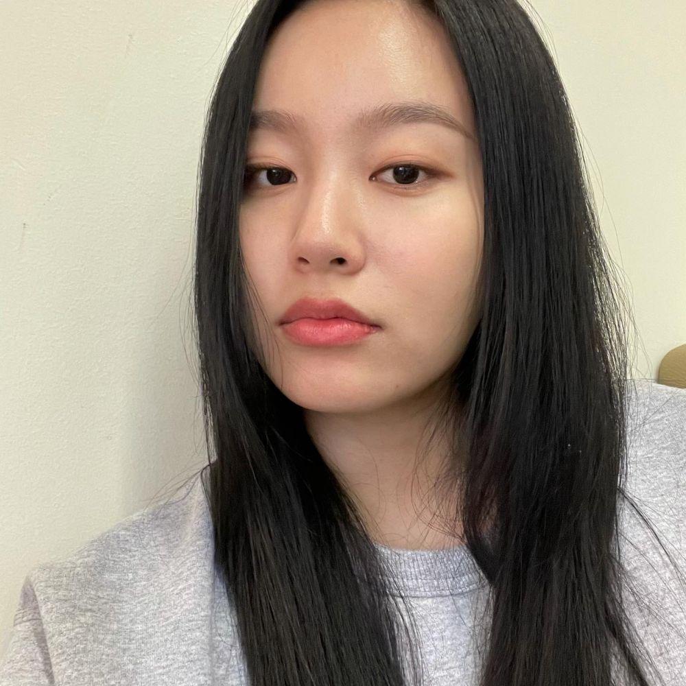 9 Pesona Dahi Terbuka Park Yoo Na, Cocok jadi Tokoh Ambisius!