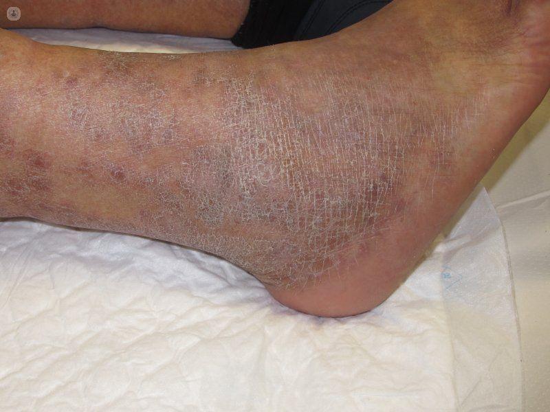 Dermatitis Stasis, Jenis Eksim akibat Masalah dengan Pembuluh Darah