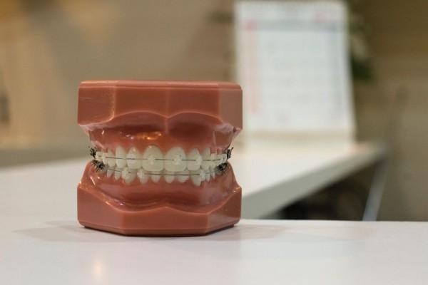 Susah Susah Gampang Ini 8 Tips Perawatan Selama Pakai Kawat Gigi