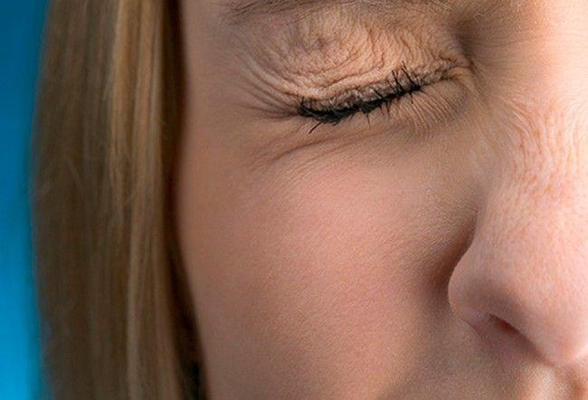 7 Kondisi Mata Ini Bisa Menjelaskan Bagaimana Kondisi Kesehatanmu