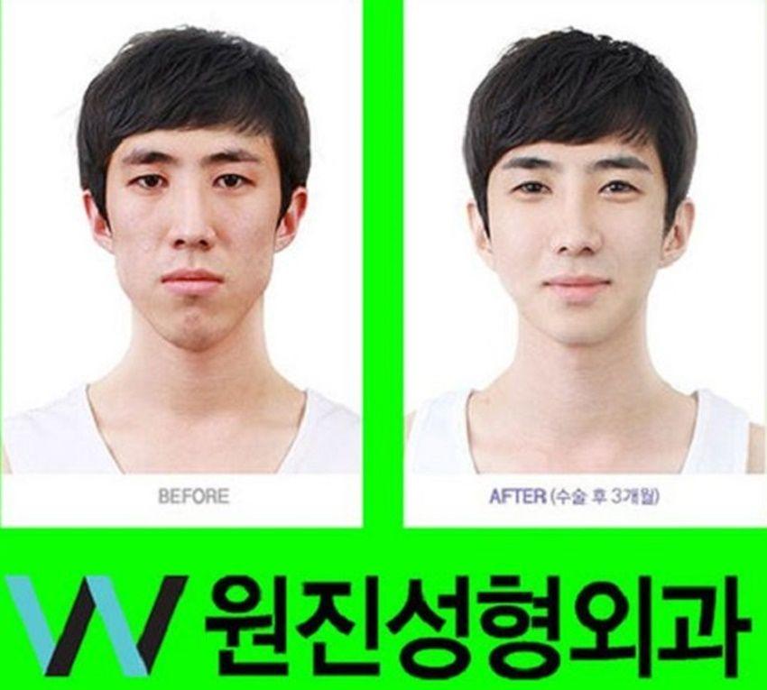 15 Foto Sebelum & Sesudah Oplas Cowok Korea, Jadi Setampan Lee Min Ho