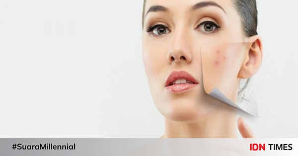 8 Cara Menghilangkan Flek Hitam di Wajah