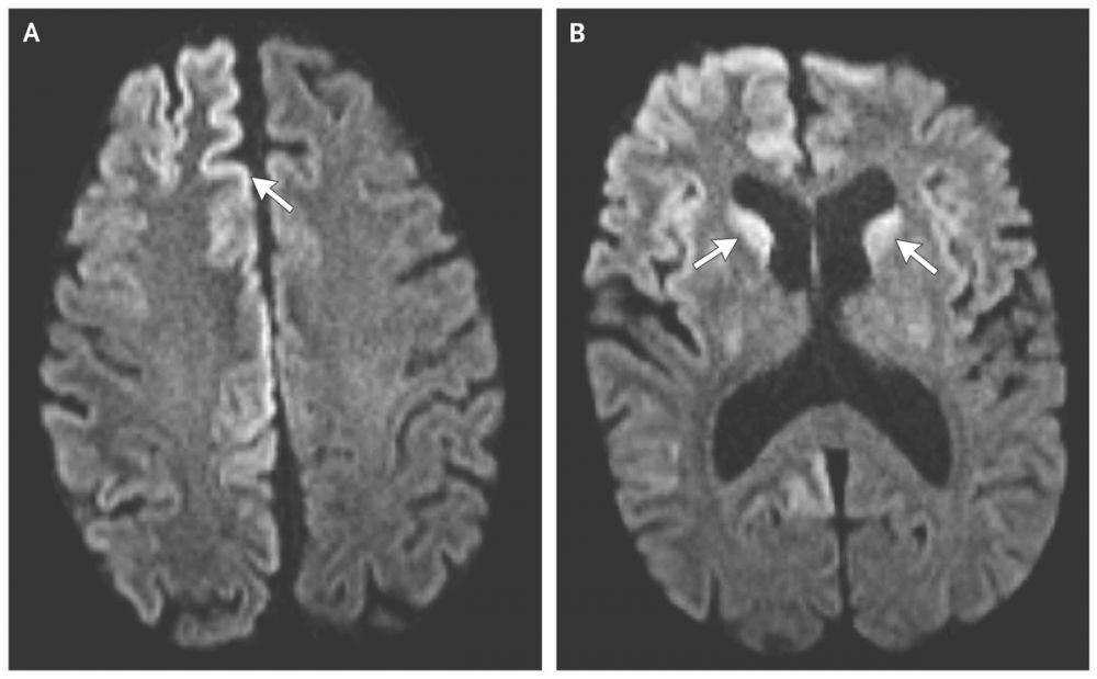 7 Penyakit Langka yang Menyerang Otak Manusia, Semoga Tak Mengalaminya