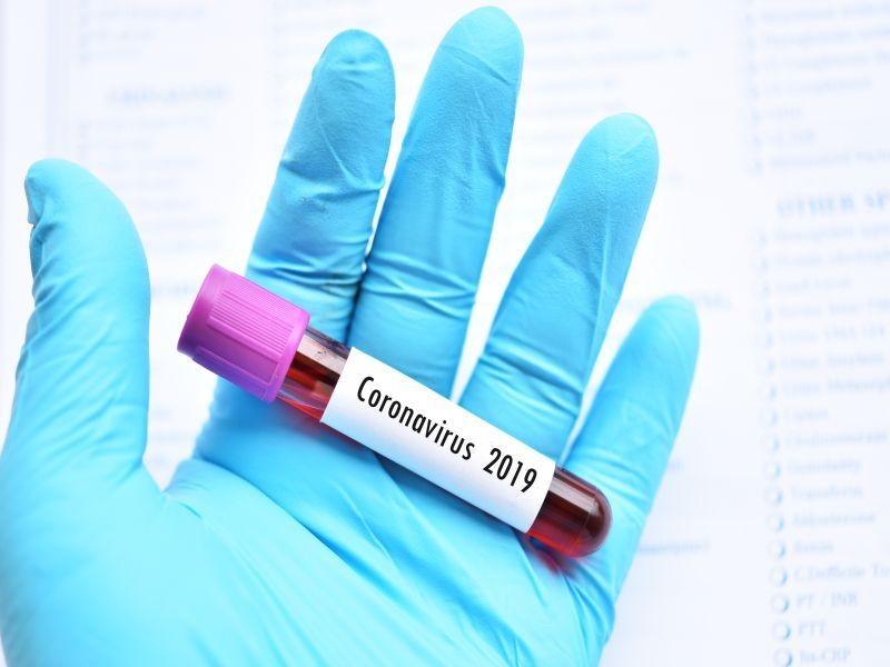 Virus Corona: Gejala, Penyebab, Cara Mengobati dan Mencegahnya