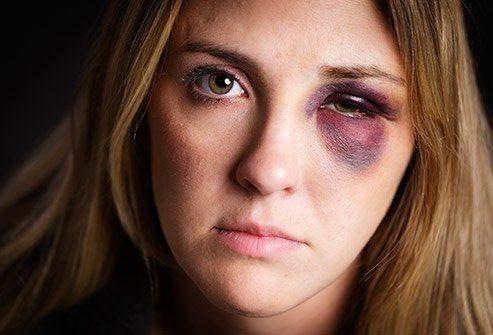 Jangan Diabaikan! 11 Penyebab Mata Merah, Bisa Jadi Penyakit Serius