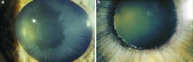 Kenali 8 Jenis Glaukoma, Penyakit yang Bisa Menyebabkan Kebutaan