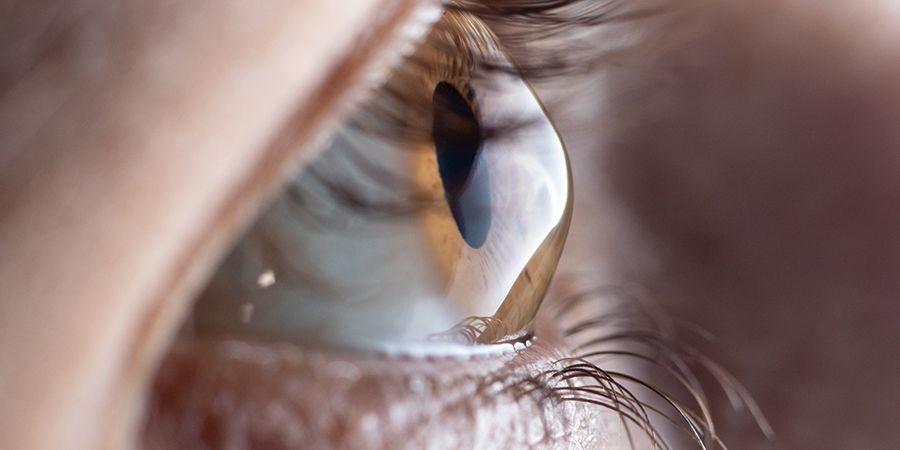 Mengenal Keratokonus, Kondisi Kornea Mata Mengalami Penipisan