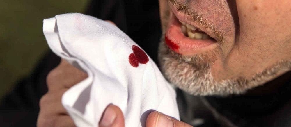 Mengalami Batuk Berdarah? Waspadai Hemoptisis, Kenali Faktanya